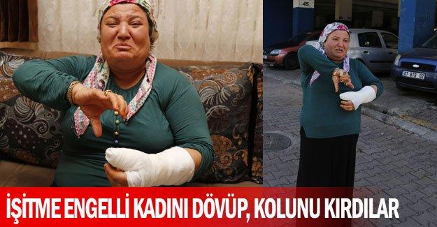 İşitme engelli kadını dövüp, kolunu kırdılar