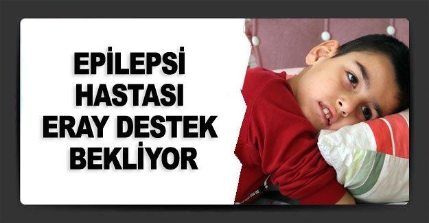 Epilepsi hastası Eray destek bekliyor
