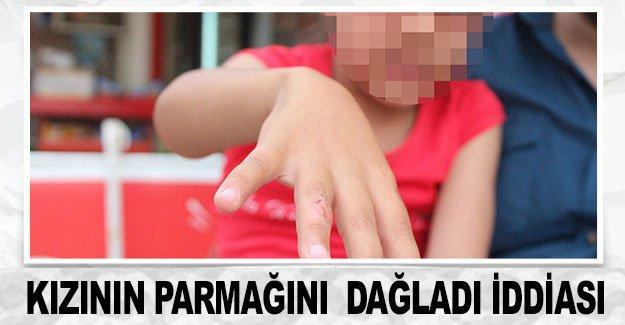 Kızının parmağını  dağladı iddiası
