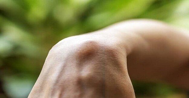 Yağ Bezesi (Lipom) Tedavisi