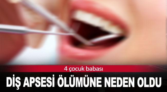 Diş apsesi ölümüne neden oldu