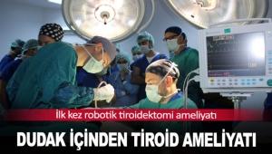 Dudak içinden tiroid ameliyatı