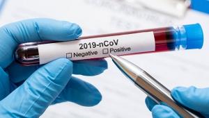 Dünya genelinde koronavirüs bilançosu 276 bin 253