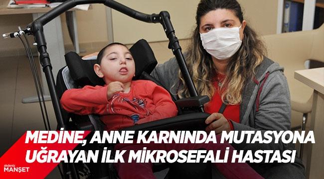 Medine, anne karnında mutasyona uğrayan ilk mikrosefali hastası